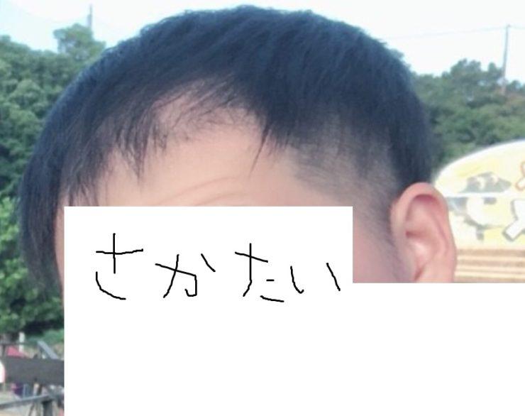 若ハゲ 髪型