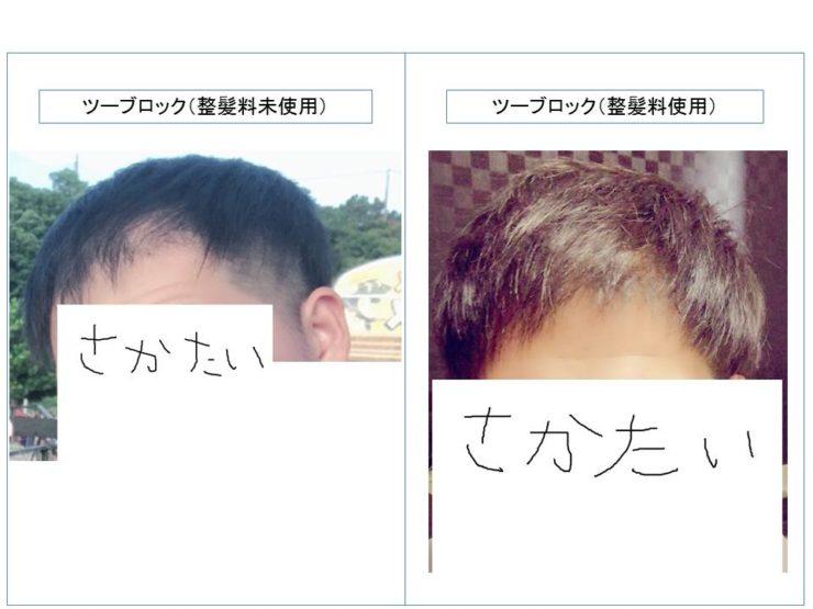 薄毛 改善
