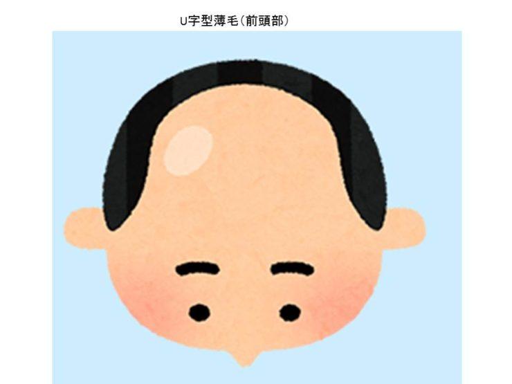 前頭部薄毛