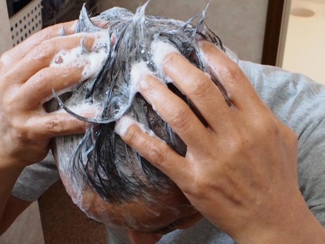 頭皮ニキビ対策