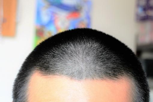 頭皮 かゆい 薄毛