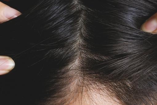 頭皮 かゆみ 対策